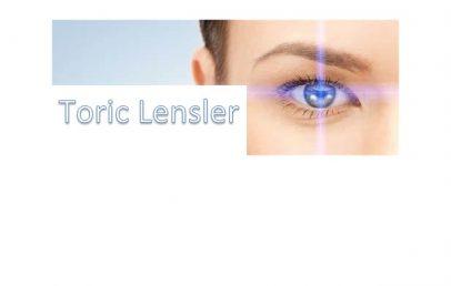 Astigmatlı Lensler